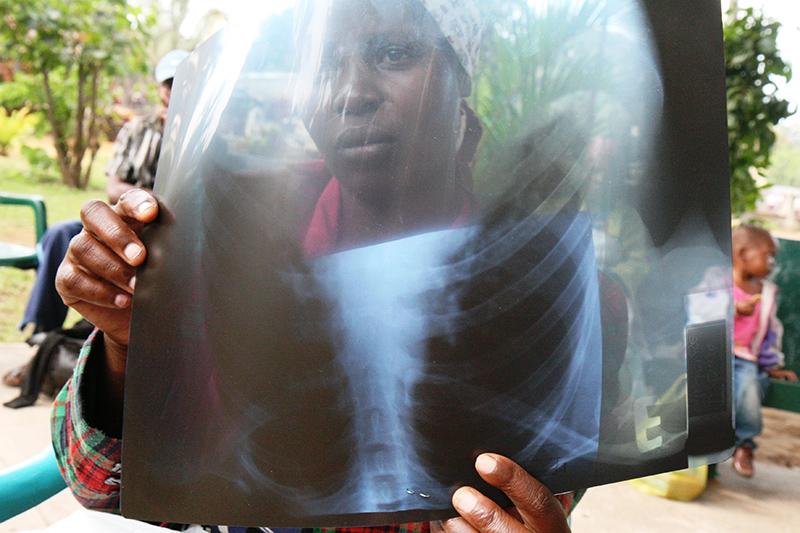 Una donna in attesa di una visita nel centro medico di Machava della Comunità di Sant'Egidio.