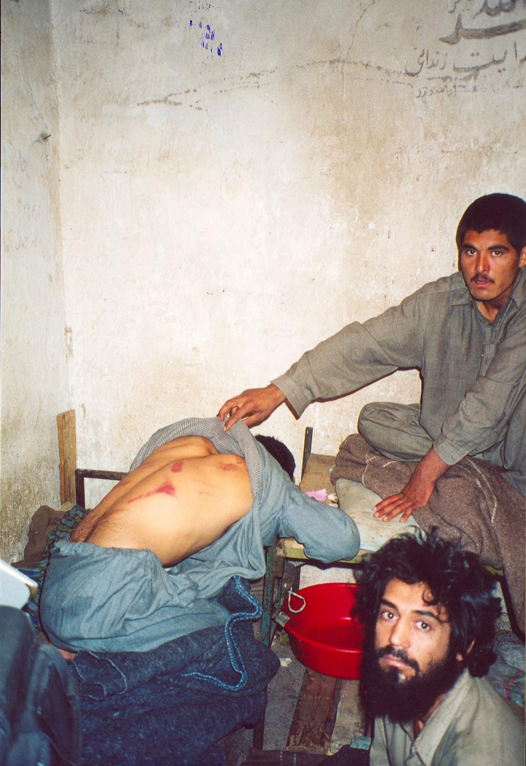 Molto prima di Abu Ghraib...